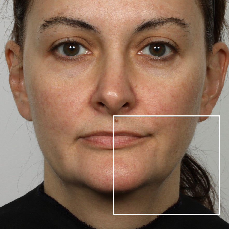 nuface trinity facial toning device reviews