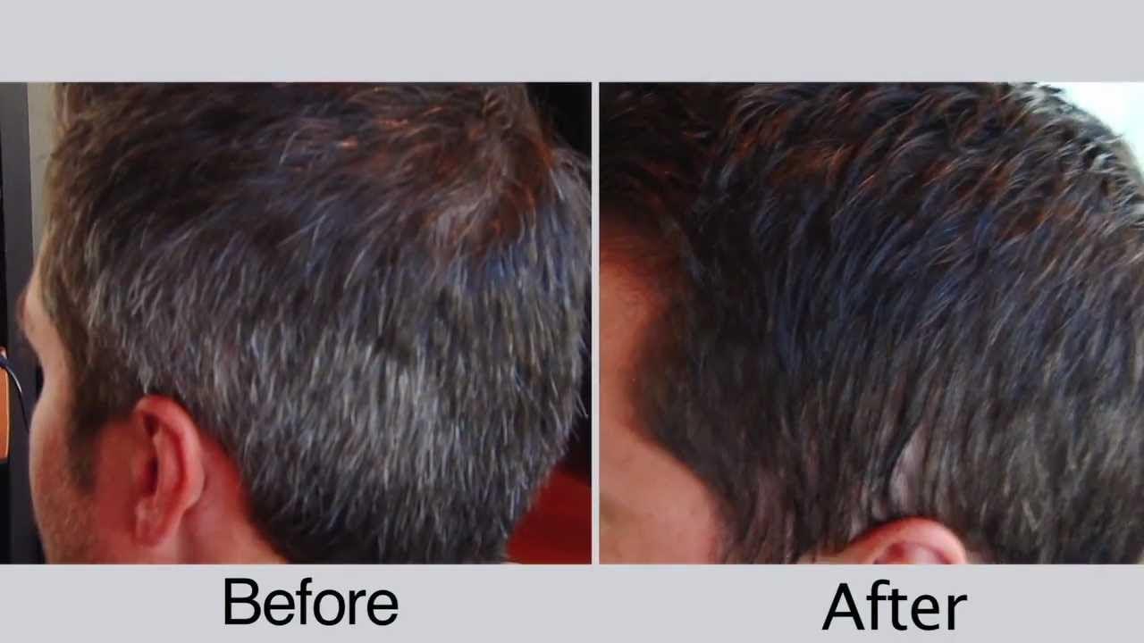 hair no more laser reviews