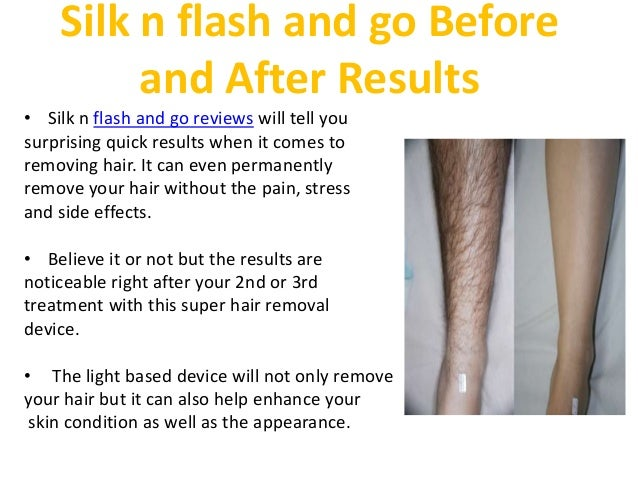 silk n flash and go reviews